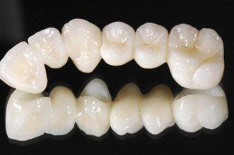 Implant Sought To Replace Failed All Ceramic Restoration Dental Dental Ceramics Dentistry For Kids