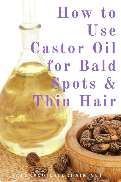 How to Grow Thicker Hair Strands with Castor Oil How to Use Castor Oil for Bald Spots & Thin Hair Thinning Hair Remedies, Hair Remedies For Growth, Hair Growth Treatment, Hair Loss Remedies, Treatment For Thinning Hair, Bald Spot Treatment, Hair Treatments, Healthy Hair Remedies, Castor Oil For Hair Growth