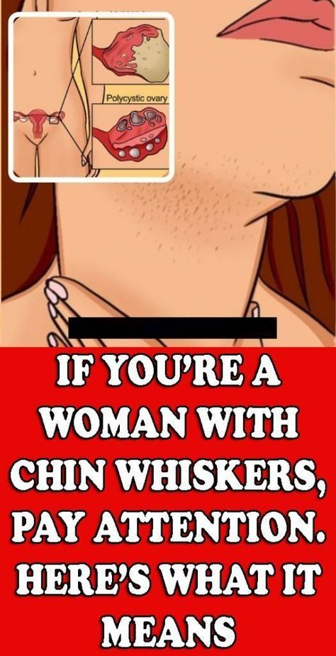 IF YOU'RE A WOMAN WITH CHIN WHISKERS, PAY ATTENTION. HERE'S WHAT IT MEANS! - Free 4 Health