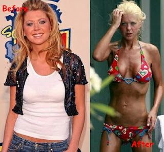 Tara Reid's Bad Plastic Surgery… She was so lovely- the decent into drinking and drugs skews things so badly Tara Reid's Bad Plastic Surgery… She was so lovely- the decent into drinking and drugs skews things so badly