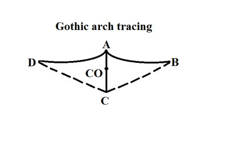 The Mandibular Border Movements Drawn On A Horizontal Plane Form Gothic Arch Tracing