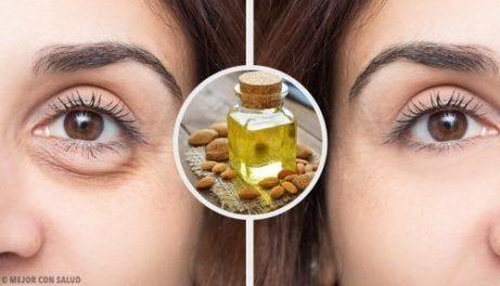 Hur får man bort mörka ringar under ögonen