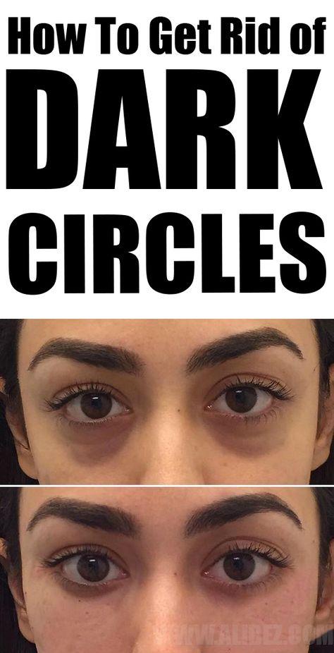 #How To Get Rid Of DARK CIRCLES