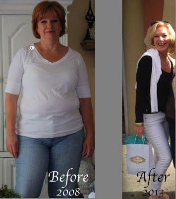 Neuerungen weight loss surgery diet recipes