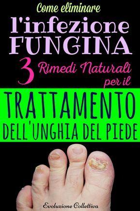 38+ Micosi delle unghie dei piedi inspirations