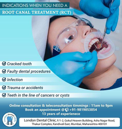 30 White Smile Ideas In 2021 Dental Facts Dentistry Dental