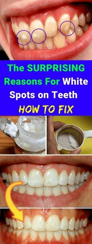 How To Fix Rotting Teeth : rotting, teeth, SURPRISING, Reasons, White, Spots, Teeth, #bestoralhygienetips, Tooth, Decay,, Health,, Decay, Pictures