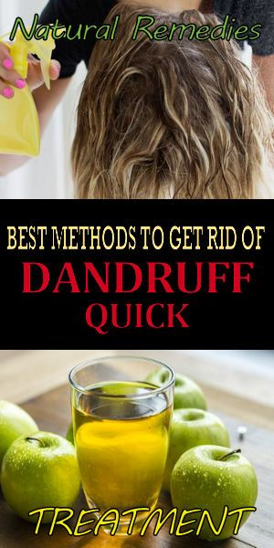 Dandruff Hacks Dandruff Scratchy Scalp Home Remedies Things To Know When You Have Dandruff Or Dandruff Treatment Dandruff Treatment Dry Scalp Dandruff Remedy