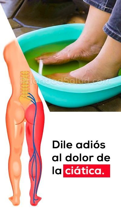Pierna ciatica sintomas dolor