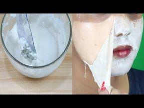 varicoză fața pe față cum să eliminați tampoane de genunchi de compresie în prețul venelor varicoase