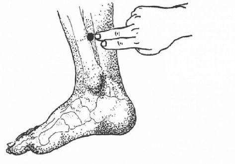 operație pentru a elimina variația varicoasă în timpul sarcinii gradina inițială varicoasă cum să fie tratată