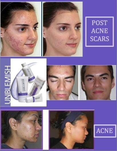 Pin On Acne Scars Fade