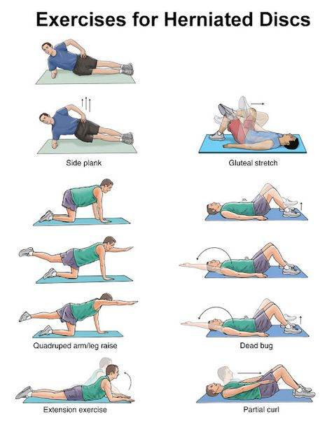 Suggested exercises for herniated disc