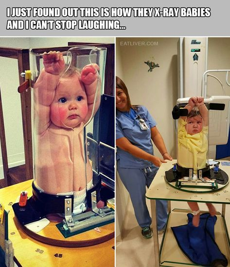 This Is How They X-Ray Babies