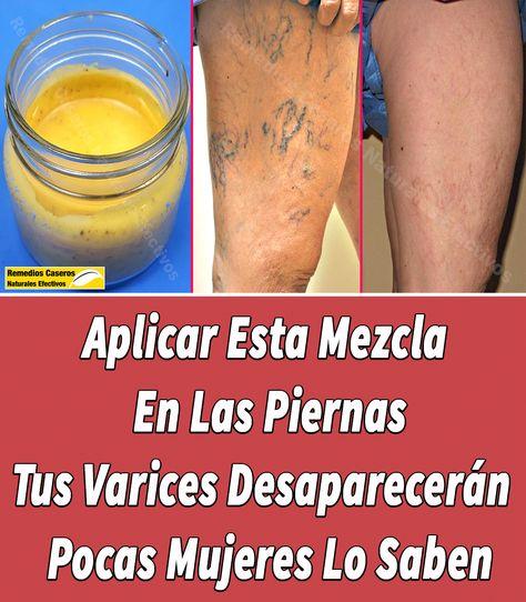 medicina de la oasele de struguri varicoase varicoase