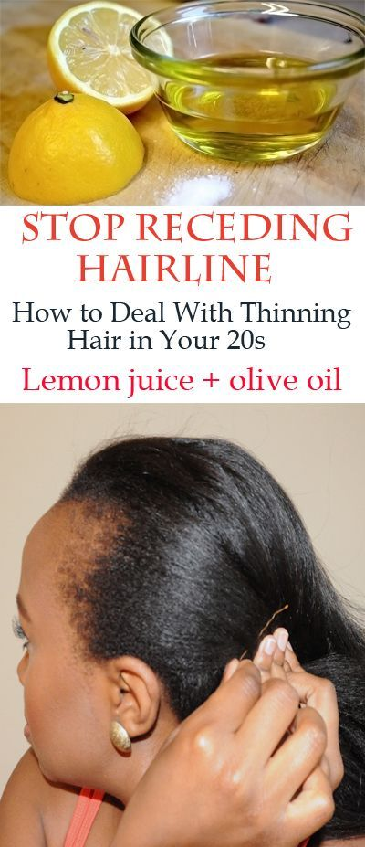 Cure hairline receding natural for Aloe Vera: