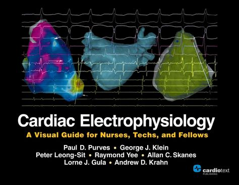 Cardiac Electrophysiology: A Visual Guide for Nurses, Techs, and Fellows
