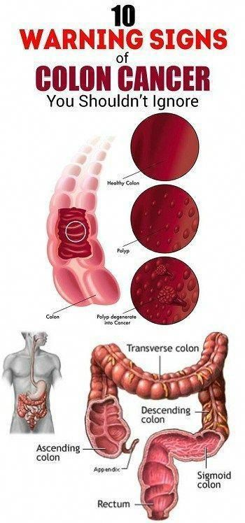 10 Warning Signs Of Liver Damage You Should Not Ignore In 2020 Colon Cancer Warning Signs Healthy Colon