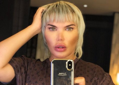 Brazilian Rodrigo Alves, who is addicted to plastic surgery – also known as the lifelike 'Ken' – has to be operated on his olfactory organ again after his nose is start to collapse The post Facelift addict Rodrigo: 'My nose suddenly drops' appeared first on Afrinik.