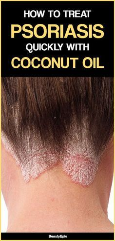 How To Treat Psoriasis Quickly With Coconut Oil Coconut Oil For Psoriasis Treat Psoriasis Psoriasis Remedies