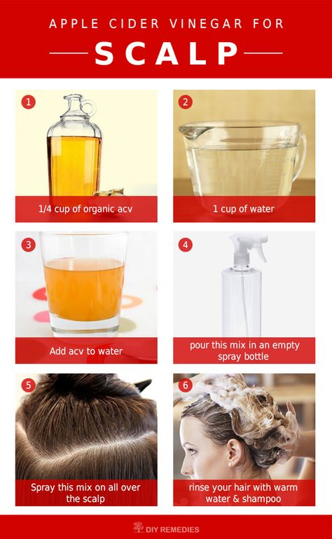 Method – 1: (Apple Cider Vinegar Spray)  This process is used to treat all scalp problems that include dry scalp, itchy scalp, dry itchy scalp, dry and dandruff, itchy and dandruff, scalp buildup, scalp psoriasis and flaky scalp.