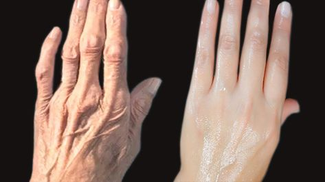 How To Remove Wrinkles On Your Hands Clear The Hand Roughness And Dryness Wrinkle Wrinklyhands Handwrinkle Handwri Wrinkles Hands Wrinkle Remover Wrinkles