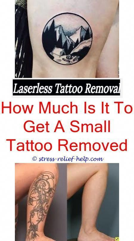 Skin Graft Tattoo Removal Profade Tattoo Removal Cream Price Why Not To Smoke After Laser Tattoo Rem Tattoo Removal Cream Eyebrow Tattoo Removal Tattoo Removal