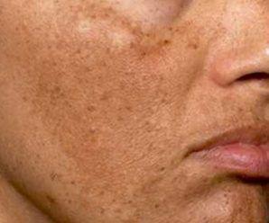 crema para manchas del sol en la cara