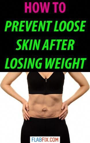 Use This The Tips In This Article To Prevent Loose Skin After Losing Weight Prevent Loose Skin Flabfix Howto In 2020 Loose Skin Skin Tightening Stomach Saggy Skin