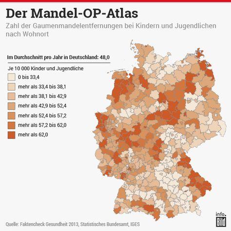 In diesen Regionen werden Mandeln durch Operation am häufigsten entfernt.