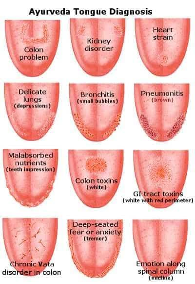 Tongue Health Diagnosis - Pictures And Video | The WHOot