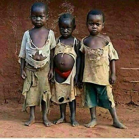 200 Ideas De Pobreza Niños Del Mundo Niños Pobres Injusticias En El Mundo