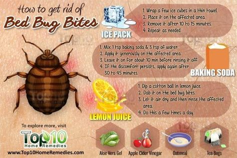 How To Get Rid Of Bed Bug Bites Natural Remedies Pinterest Bed