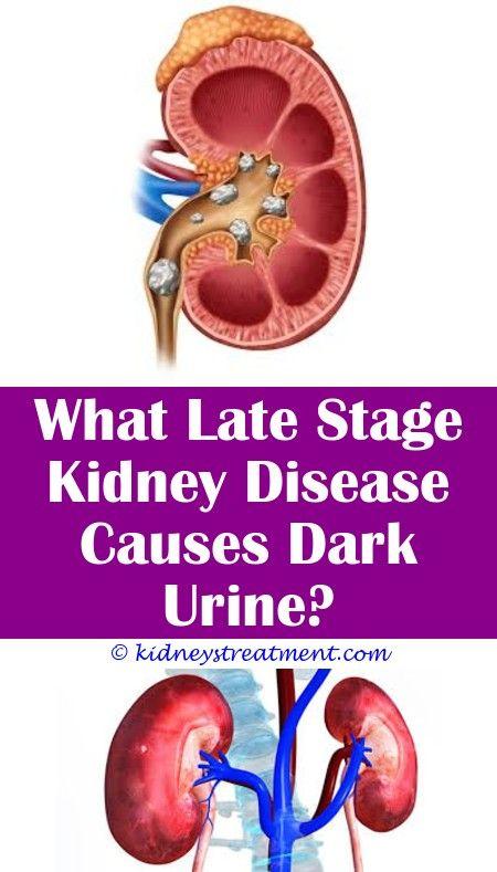 Pin On Kidney Disease Symptoms