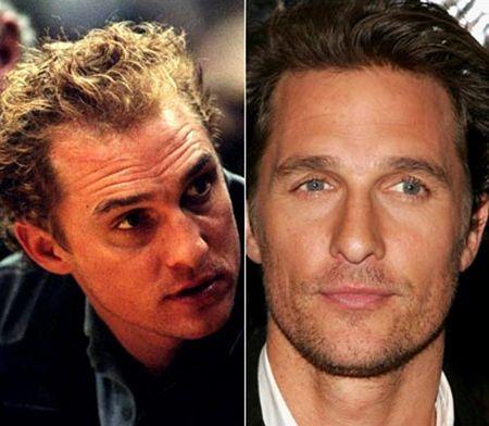6 Male Celebrities Who Have Had Hair Transplants Matthew Mcconaughey Celebrites Masculines