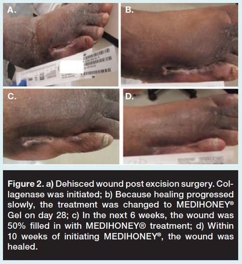 17 best Skin Care images on Pinterest Skin treatments, Skincare - wound ostomy continence nurse sample resume