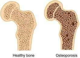 17++ What gender is most affected by osteoporosis info