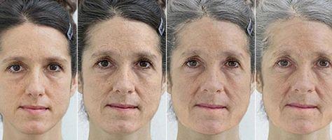 Facial dermabrasion in te victor valley