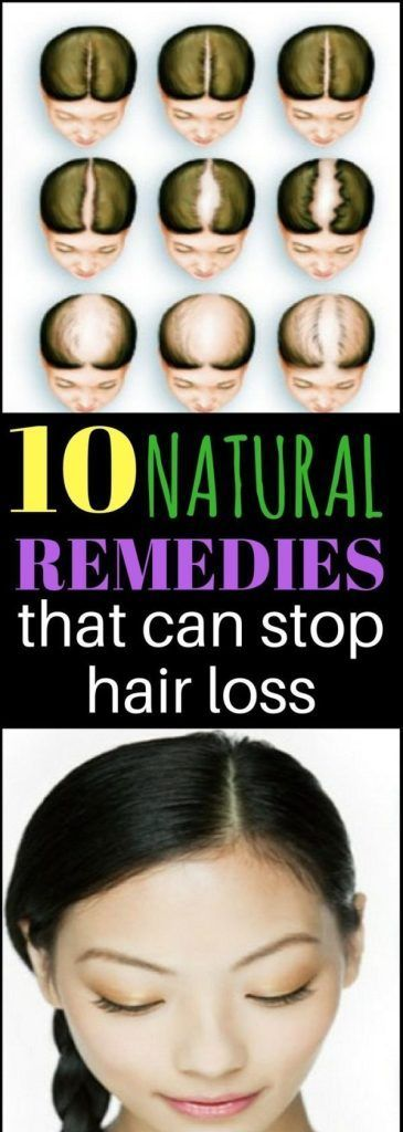 Stop balding to ways How to
