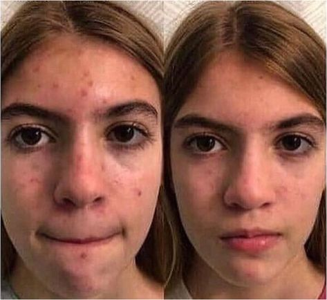 Retinoid prescription creams can reduce your acne by unplugging follicles. They also help with wrinkles and exfoliate your skin. Retinoids, which include retinol, retinal and tretinoin (Retin-A), are chemically similar to vitamin A. Side effects include skin irritation. Retinoids should not be used by women who breastfeed, are pregnant or may become pregnant.   Have a look at this great short article. #acneremedies