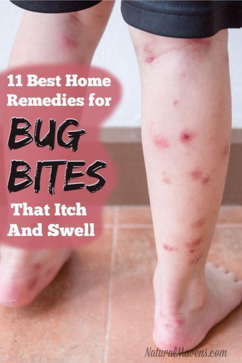 4f98db8e2956426ee02e3122907e9984 - How To Get Rid Of Insect Bites On Legs