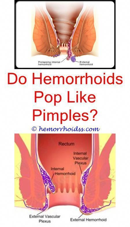 Did You Understand That There Are Several Things In Your Kitchen To Aid Alleviate Some Popular Symptoms Bleeding Hemorrhoids Hemorrhoids Hemorrhoids Treatment