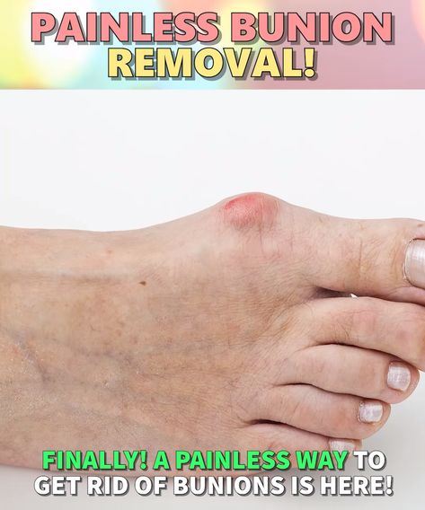 👣Non-Invasive Foot Relief - (4.9/5) From Over 2500+ Reviews