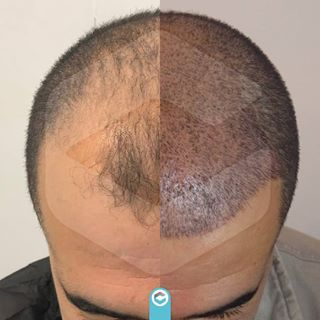 Clinista Hair Transplant Clinista Tr Instagram Fotograflari