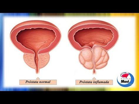 próstata agrandada 5 5cmhs