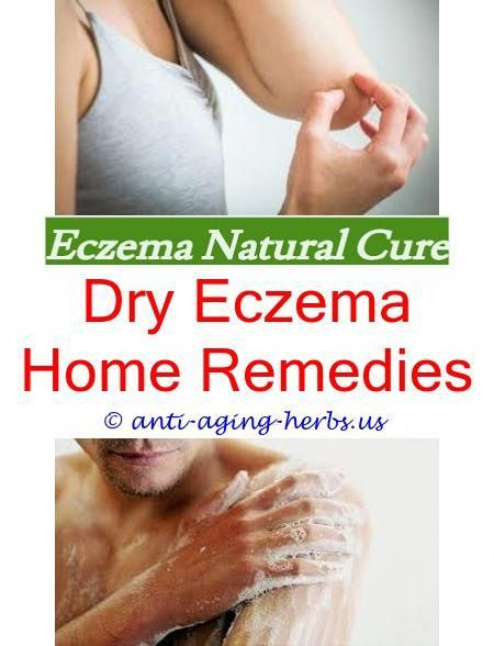 Can dyshidrotic eczema spread Eczema natural treatment in hindi Does