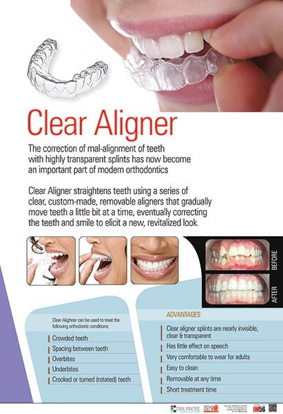 Dental Posters In India Dental Clinic Posters In India Dental