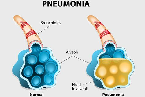 What are the symptoms of pneumonia? Symptoms of pneumonia caused by bacteria usually come on more quickly than pneumonia caused by virus. Although symptoms may vary greatly depending on other underlying conditions, common symptoms include: Cough Rusty or green mucus (sputum) coughed up from lungs Fever Fast breathing and shortness of breath Shaking chills Chest pain that usually worsens when taking a deep breath (pleuritic pain)....