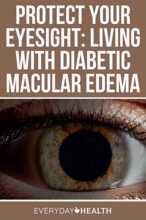 With the right treatments, it's possible to stop the progression of diabetic macular edema (DME), a cause of vision loss in people who have diabetes.