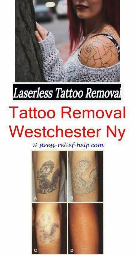 Tattoo Removal Without Laser What Hurts More Getting A Tattoo Or Removing It What Tattoo Is Kim Kardash Tattoo Removal Cost Tattoo Removal Tattoo Removal Cream